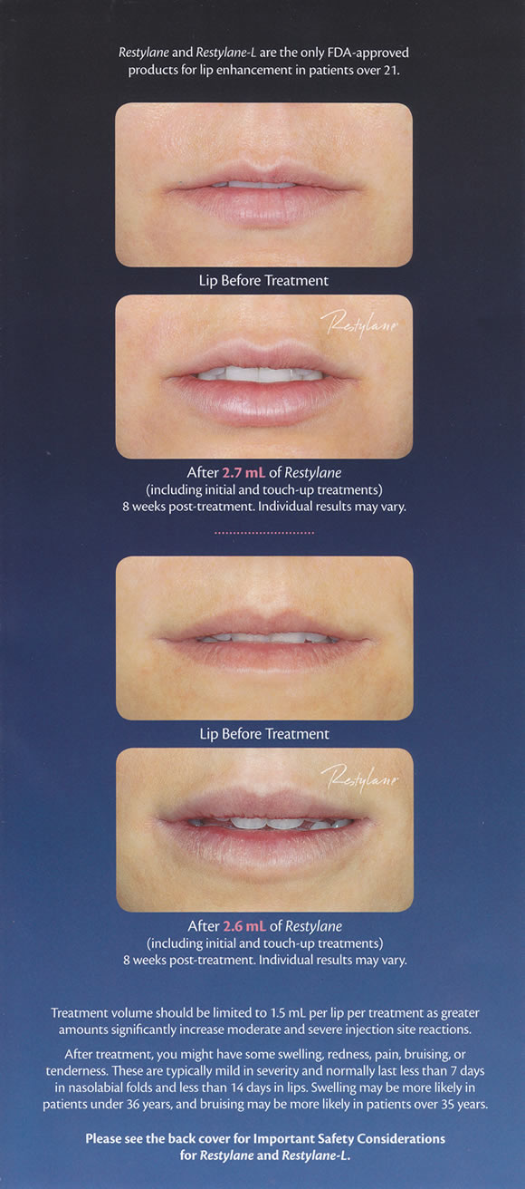 Restylane® lip enhancement treatment before and after