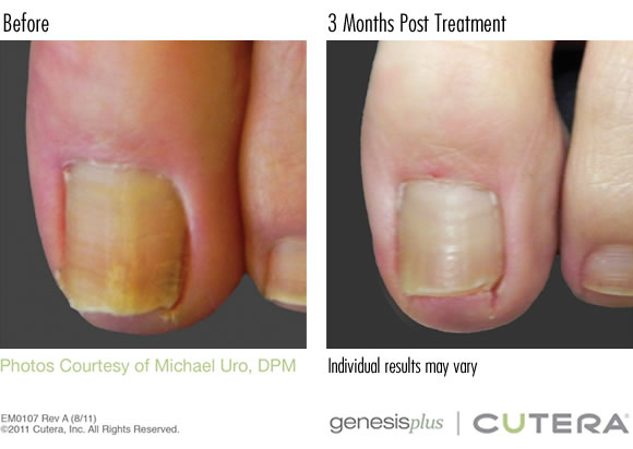 Nail Fungus Best Laser Treatment For Toenail Fungus In